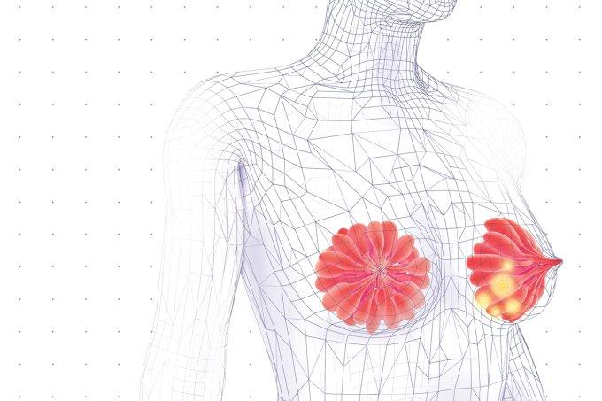 aparelho-novo-diagnosticar-cancer-de-mama